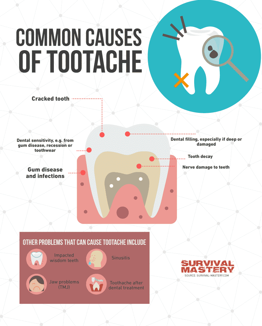 Toothache infographic