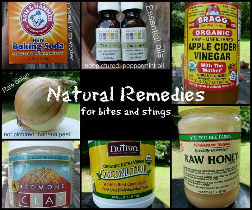 Home remedies for bites and stings