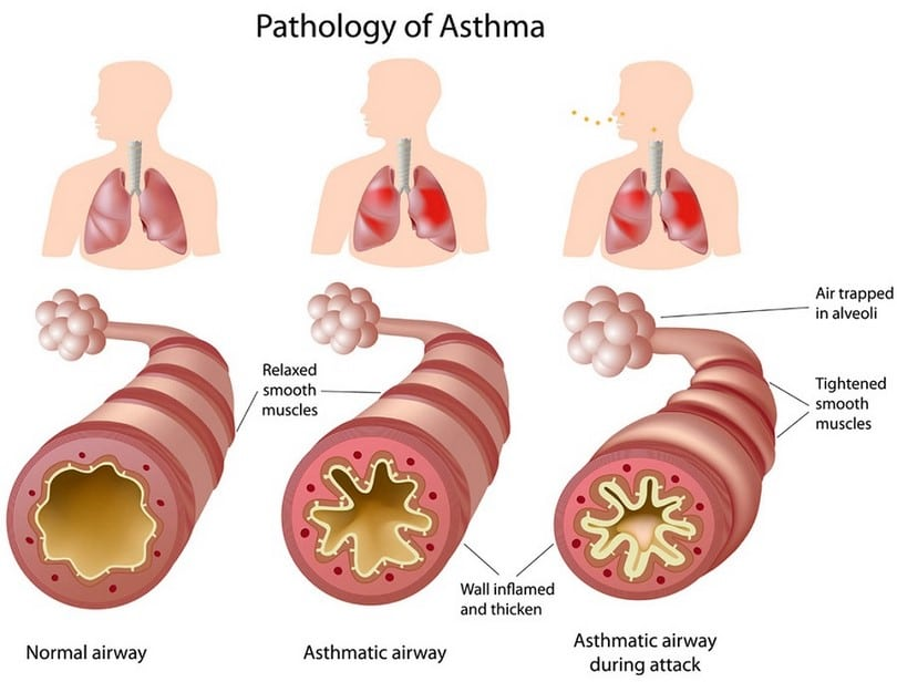 Pathology of asthma