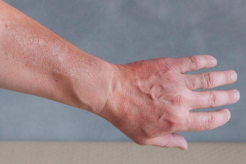 Sunburned skin