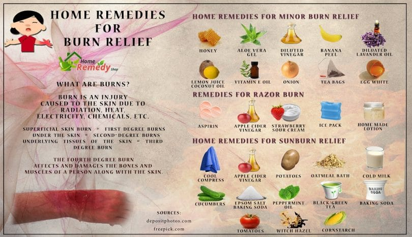 Home remedies for sunburns