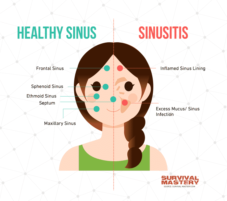 Sinus Infection Treatment infographic