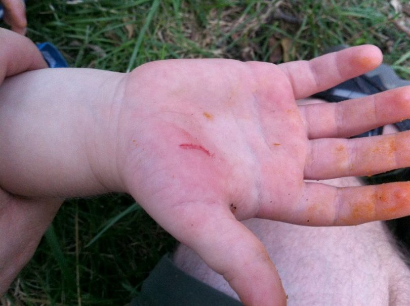 Camping cut on the hand